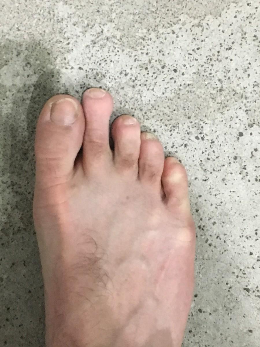 A Stiff Big Toe
